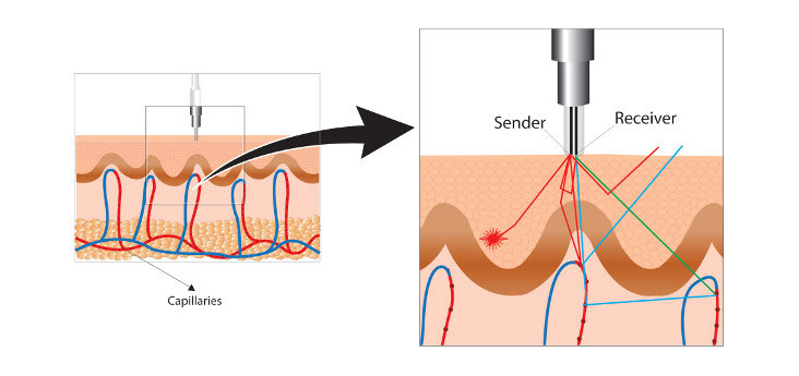 Measuring microcirculation using laser-Doppler in the #diabeticfoot? Location. Location. Location.